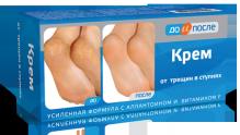 До и После крем для ног от трещин в ступнях 150мл